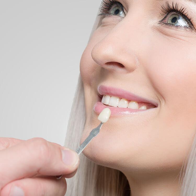 Anna K. Choe DDS - Pasadena Dentist - dental crowns