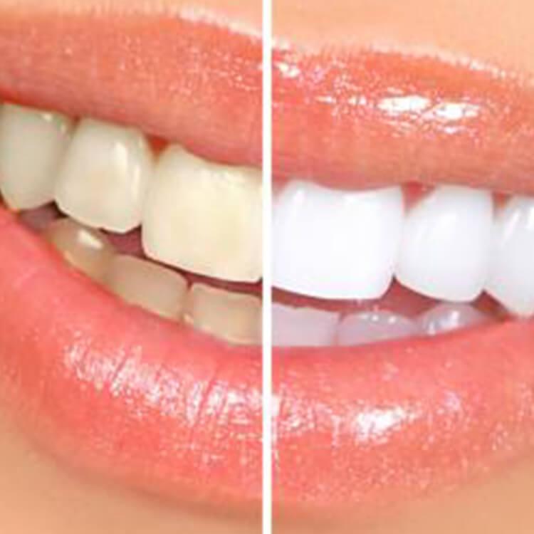 Anna K. Choe DDS - Pasadena Dentist - whitening